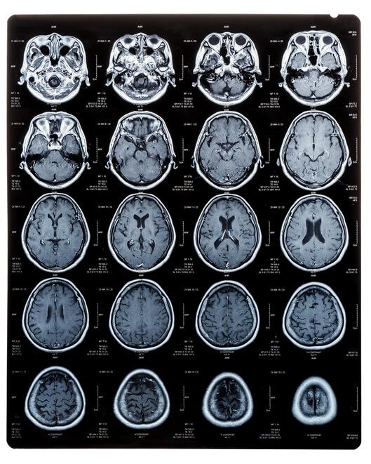 Volumetric brain mri