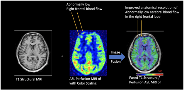 Applications of arterial spin labeling for documenting brain injury