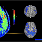 HOW CAN ARTERIAL SPIN LABELING (ASL) HELP OBJECTIVELY DOCUMENT BRAIN INJURY?