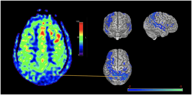 Benefits of arterial spin labeling for brain injury-proof