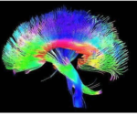 HOW CAN DIFFUSION TENSOR IMAGING MRI HELP OBJECTIVELY DOCUMENT A BRAIN INJURY?