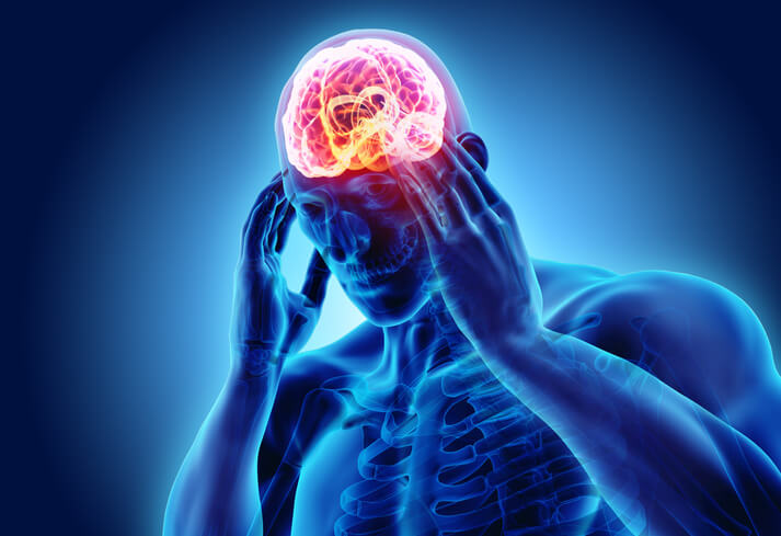 headaches after a concussion