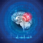 POST CONCUSSION SYNDROME AND TREATMENT