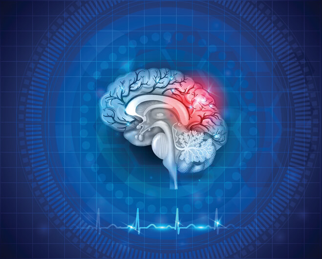 what is post concussion syndrome